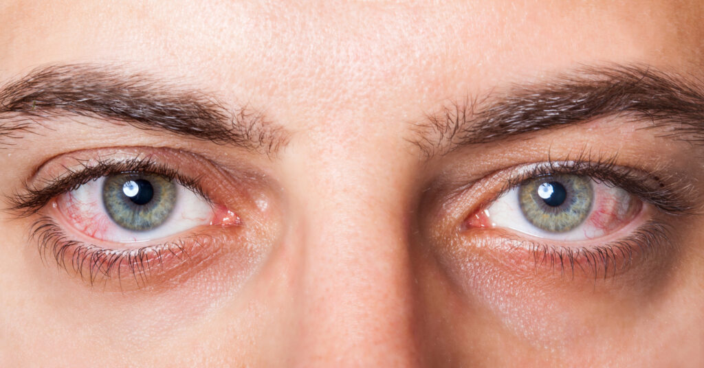 red dry eyes